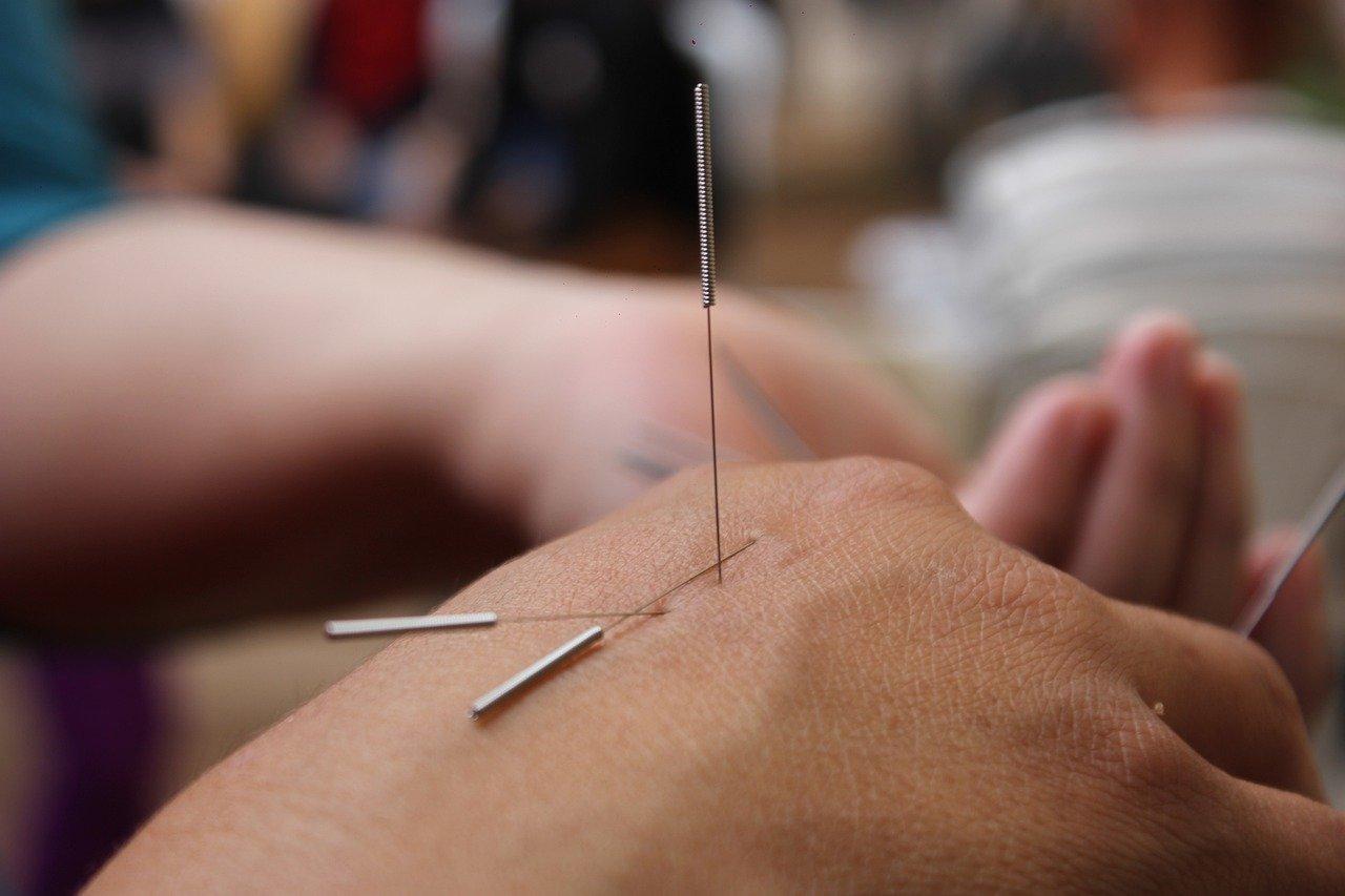 Acupunctuur Utrecht